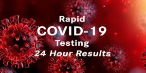 Rapid COVID 19 testing CHP
